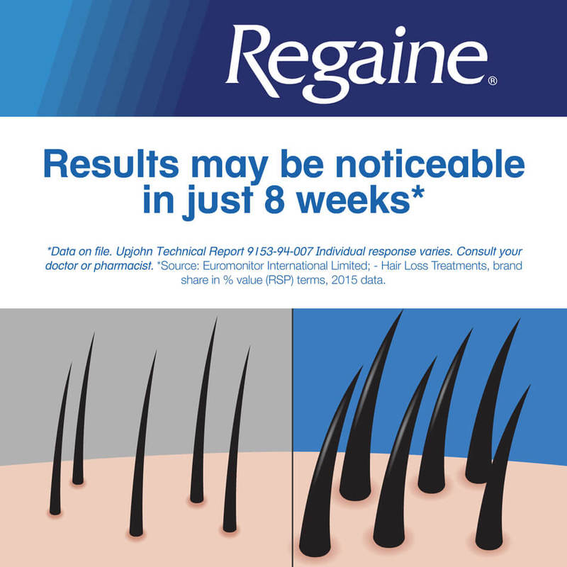 Regaine Extra Strength Hair Loss Treatment 5% Minoxidil Solution Triple Pack, 3x60ml